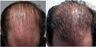 Hairstim - przeciw wypadaniu włosów - opinie - gdzie kupić - cena
